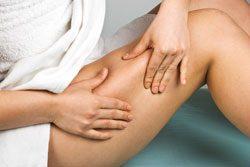 Cellulite bekämpfen – 8 Tipps für den Erfolg