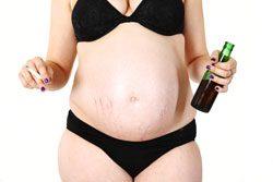 Schwangerschaftsstreifen vorbeugen – 4 Tipps