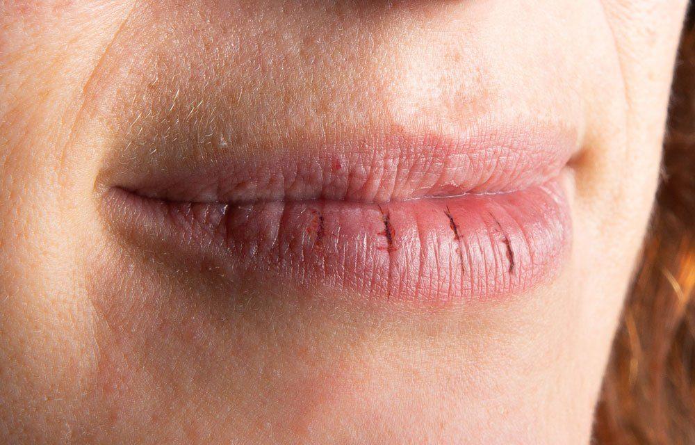 trockene Lippen tipps honig lippenpflege