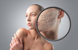 Trockene Haut müssen Sie mit viel Feuchtigkeit versorgen