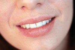 Lippenpflegestifte helfen nur vorübergehend