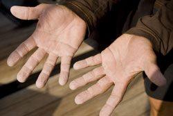 Schwitzige Hände sind etwas Unangenehmes