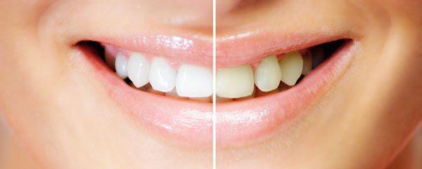 Zahnaufhellung per Bleaching und Whitening
