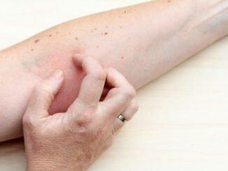 neurodermitis tipps