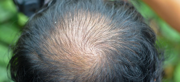 Haarausfall Männer Tipps