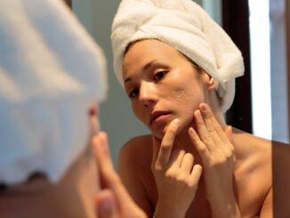 akne narben behandlung tipps