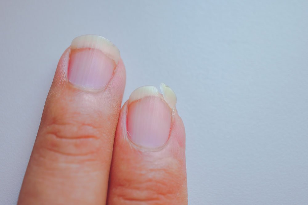 fingernägel eingerissen tipps